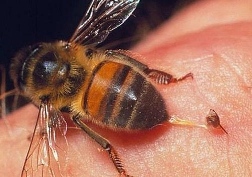 bị ong mặt quỷ đốt phải làm sao