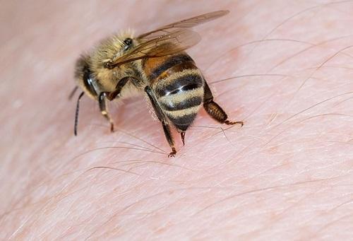 bị ong ruồi đốt có nguy hiểm không